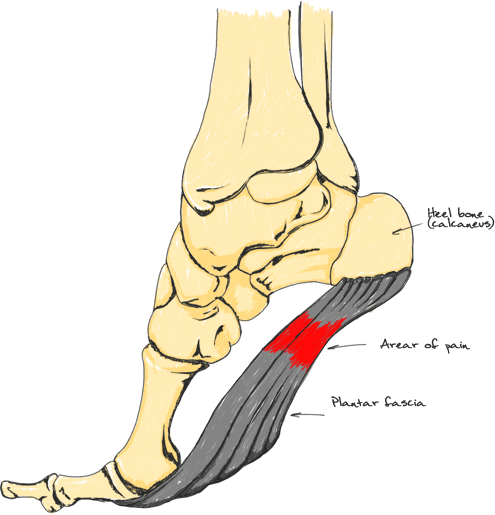 Differentiating Plantar Fasciitis From Heel Spurs And Other Types Of Foot Pain