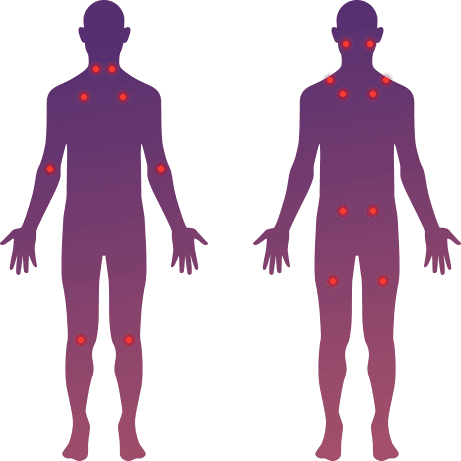 Fibromyalgia treatment in NYC | PT Specialist at NYDNRehab