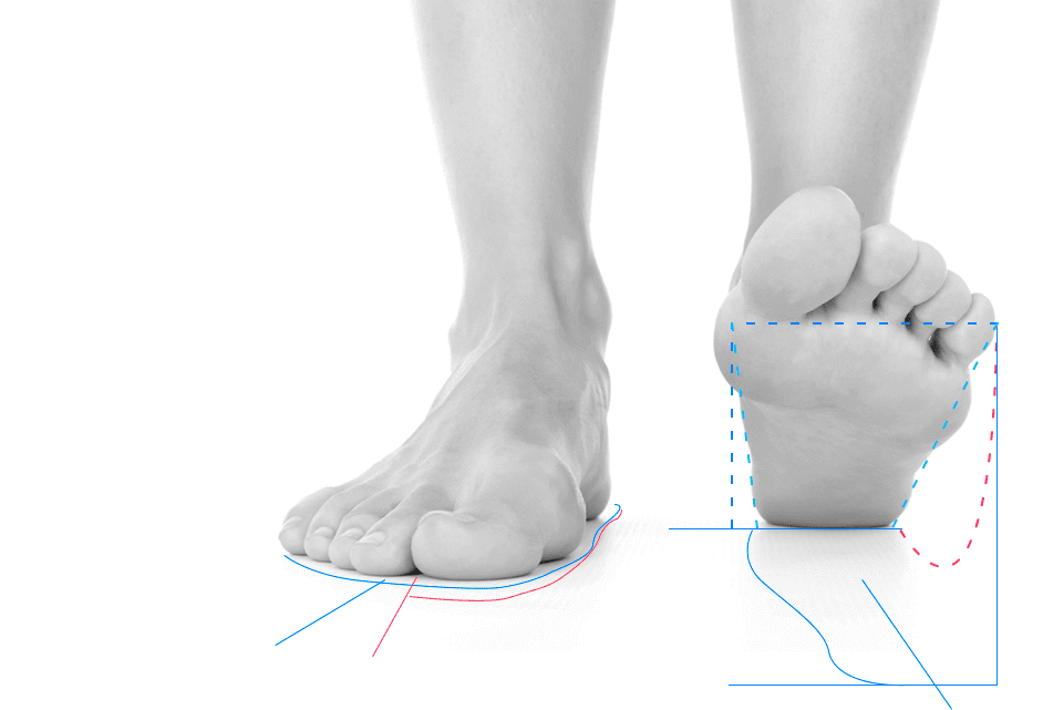 Foot analysis using both digital and analog technology