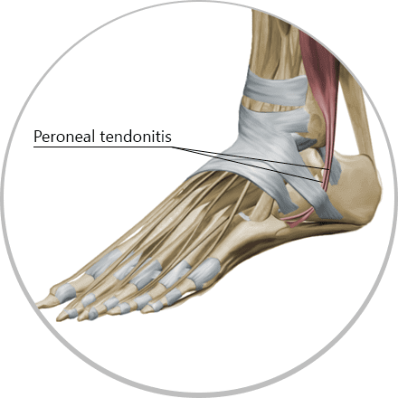 Treat peroneal tendonitis