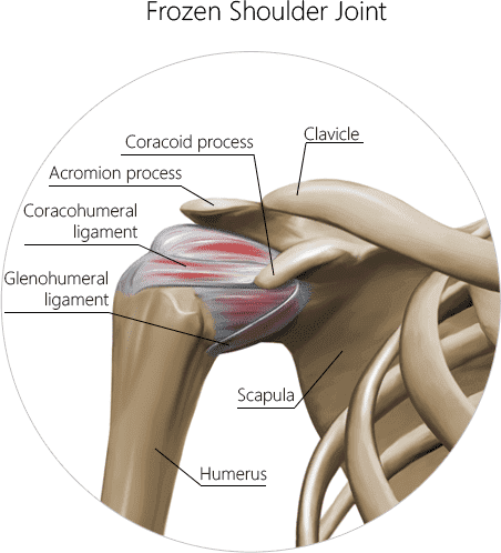 Frozen shoulder joint