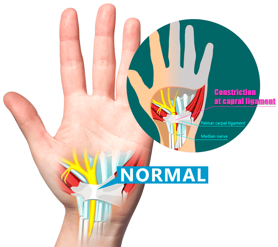 how to help carpal tunnel pain in wrist