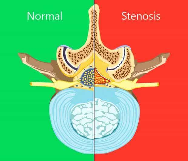 Spinal stenosis treatment in New York