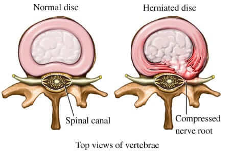 Herniated and bulding disk treatment