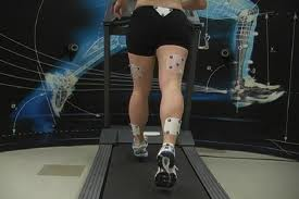 A woman during gait analysis session at NYDNRehab