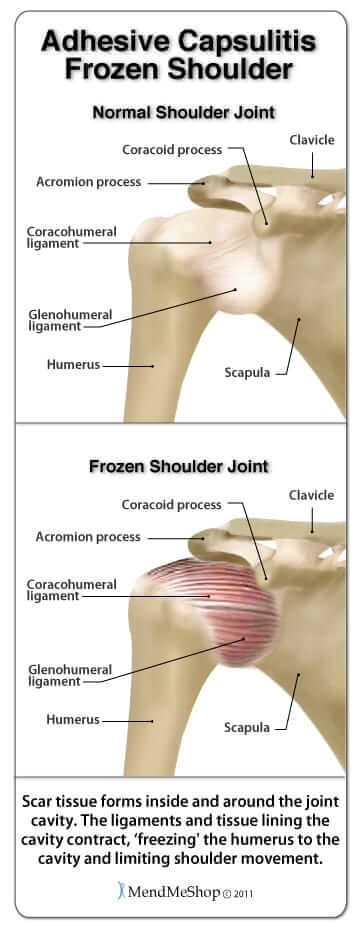 Frozen Shoulder Treatment in NYC | NYDNRehab