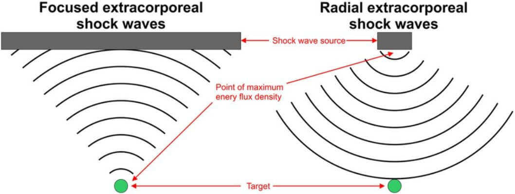 focused vs radial shockwave