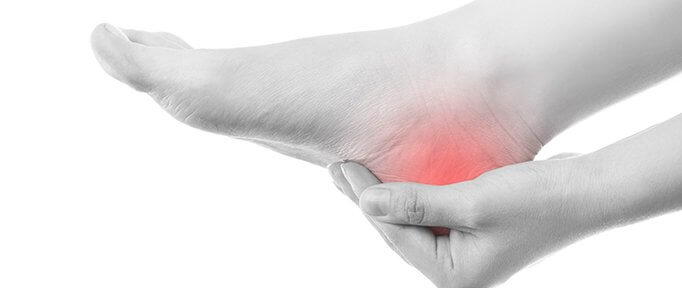 Plantar Fasciitis and Heel-Pain. Causes and Treatment Options