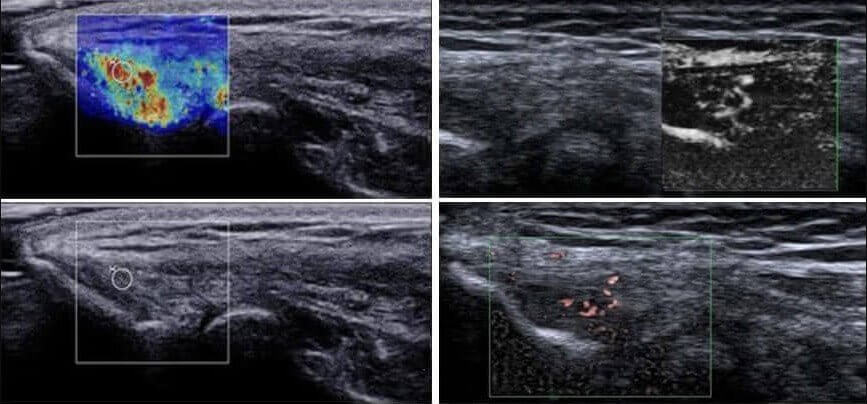 Advanced technology for diagnosing tennis elbow with new Aplio ultrasound machine