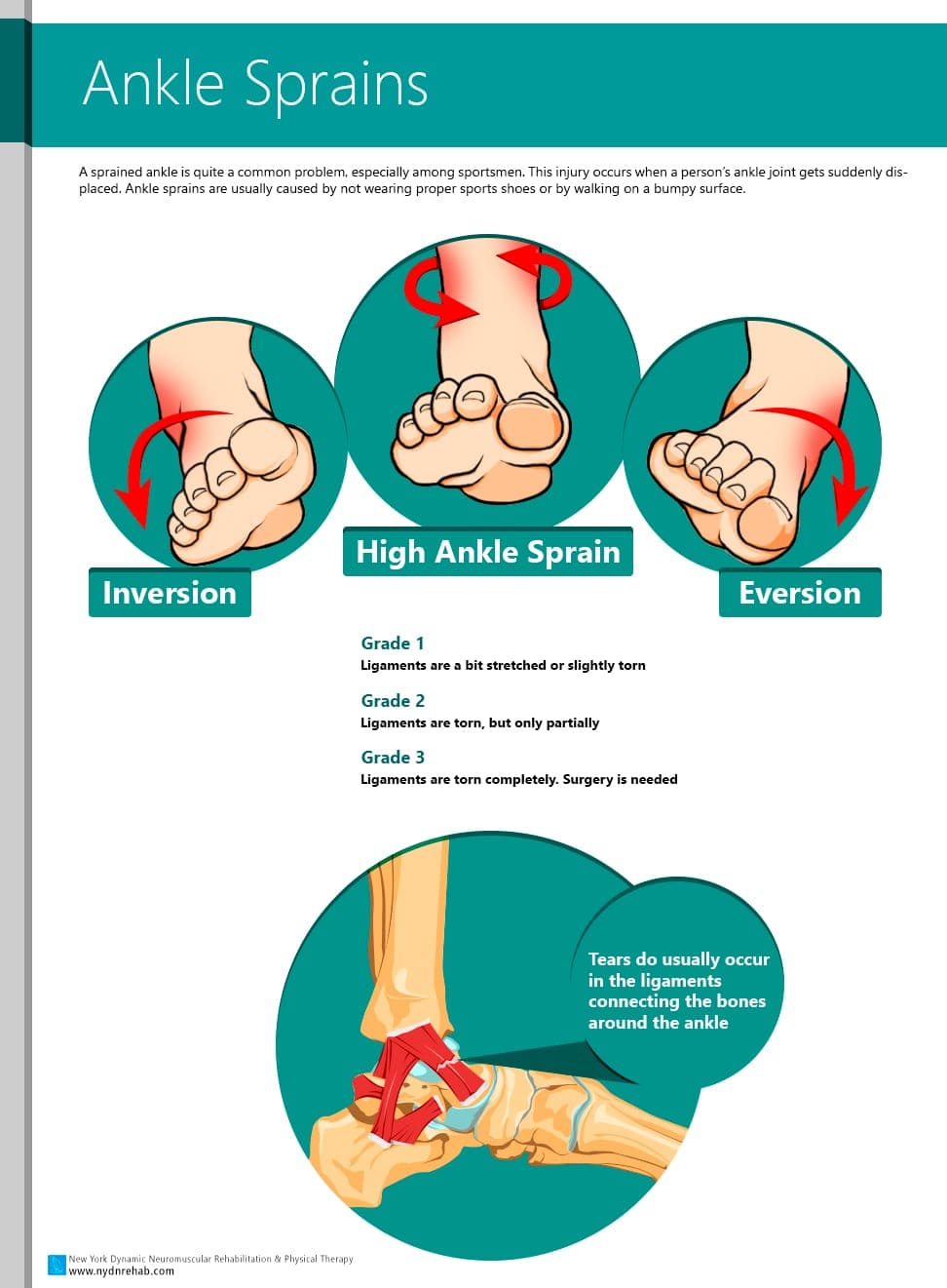 Ankle Sprains causes and symptoms Blog  Ankle sprain