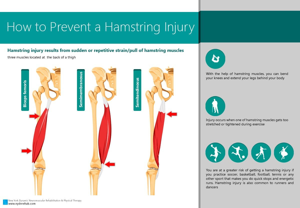 hamstring strain Introduction hamstring muscle injuries occur frequently among recreational and elite athletes several terms, including posterior thigh injury, hamstring strain, hamstring tendinopathy, and hamstring tear, are used to describe such injuries, but they are not always synonymous.