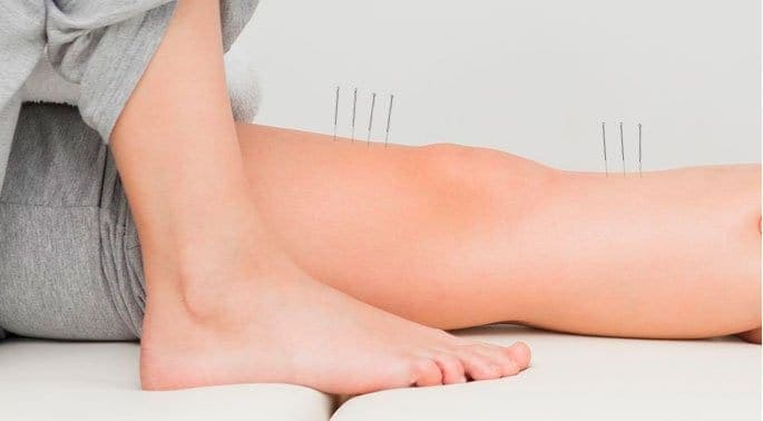 Acupuncture Proves Useful in Treating Foot Pain