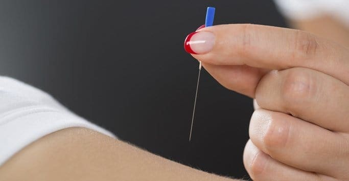 Acupuncture - How Does it Work?