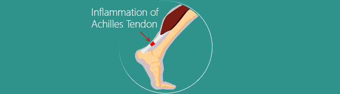 Inflammation of Achilles Tendon