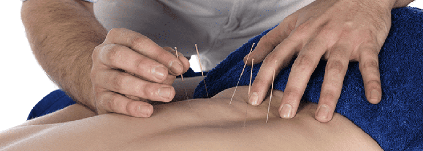 Acupuncture for Effective  Pain Relief