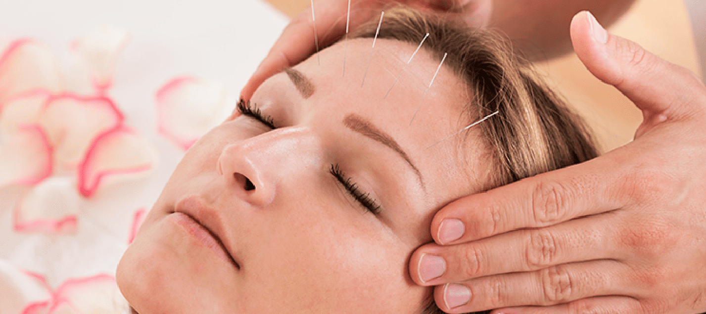 Acupuncture for Headaches Blog  Acupuncture