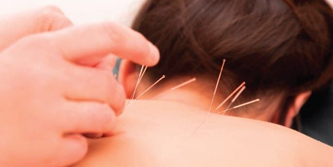 Acupuncture and Neck Stiffness
