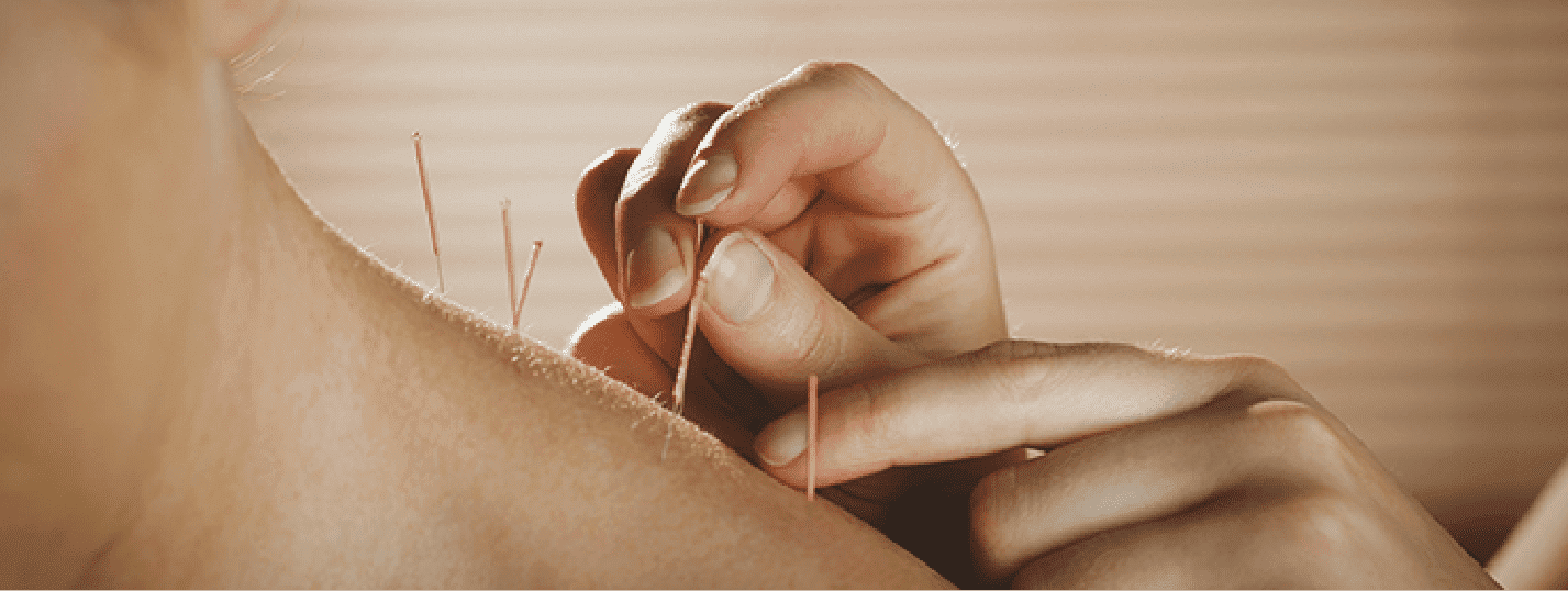 Acupuncture Can Provide Neck Pain Relief Blog  Acupuncture
