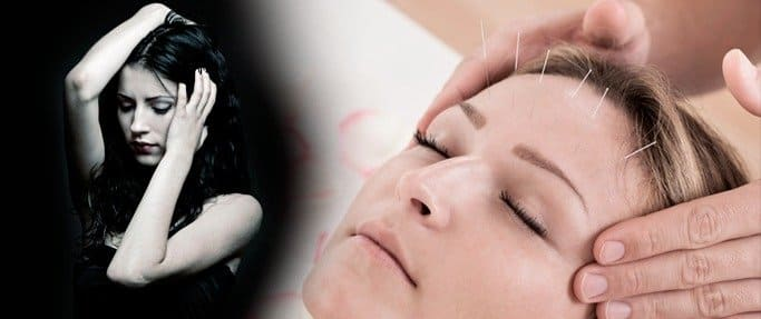 Research Shows Acupuncture is a More Effective Treatment for Migraines Blog  Acupuncture