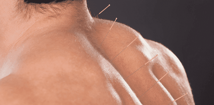 Acupuncture Relieves Sciatica Blog  Sciatica Acupuncture