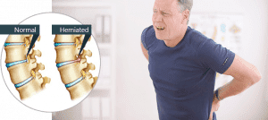 Dealing  With Herniated Disk