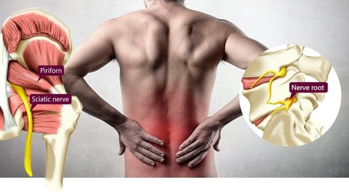 Piriformis Syndrome  and Sciatica
