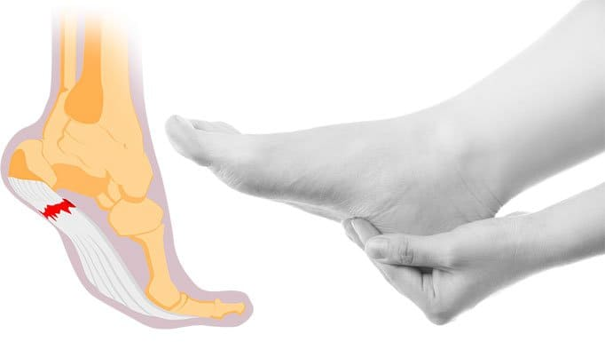 Pain From Plantar Fasciitis
