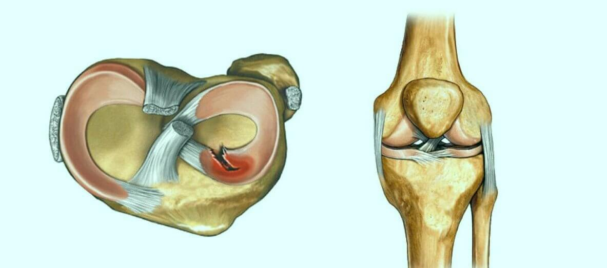 Causes Behind Tearing of the Meniscus