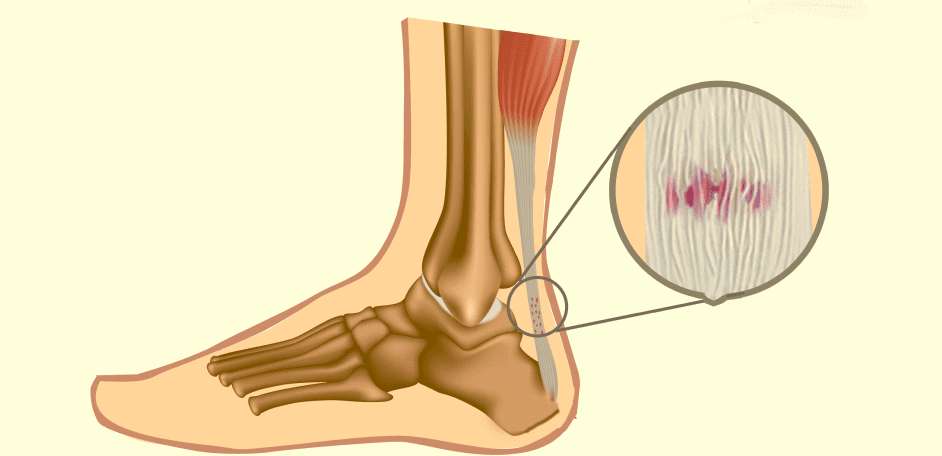 What Causes Tendon Pain