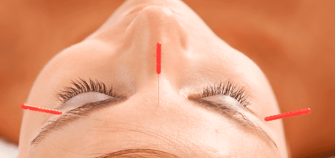 Try Accupuncture Treatments as a Way to Combat Anxiety Blog