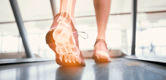Use of Balance Tests to Identify Chronic Ankle Instability Blog