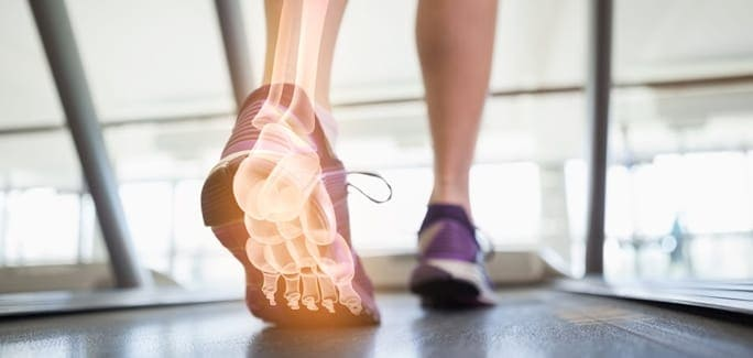 Foot Arch Pain in Runners and Athletes Blog