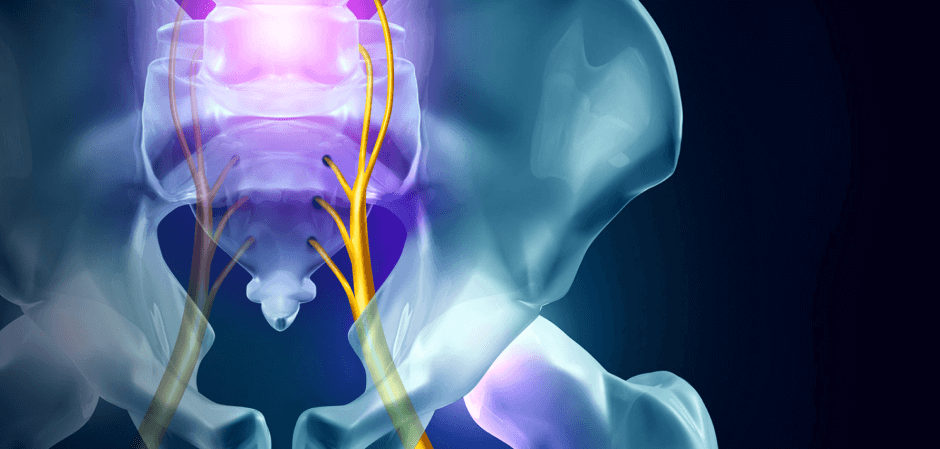 Getting to the Bottom of Pelvic Pain Blog