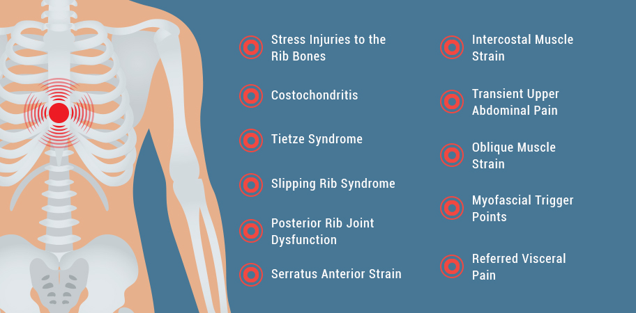 Common Causes of Rib Cage Pain