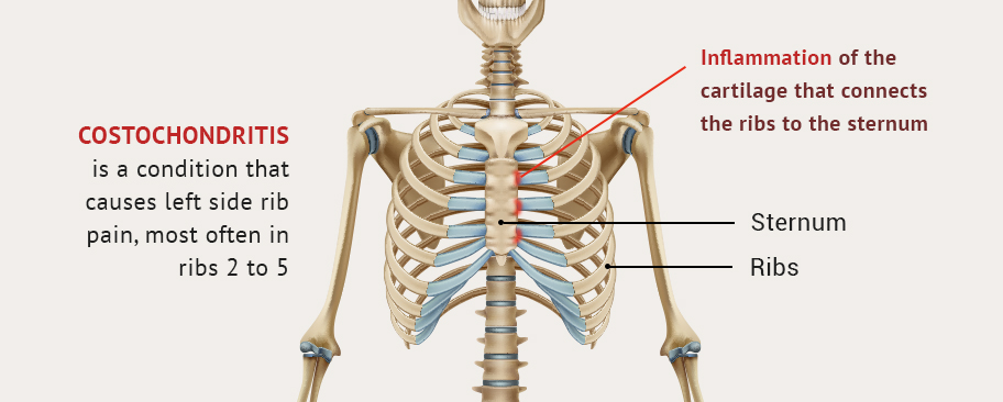 Left Side Rib Pain