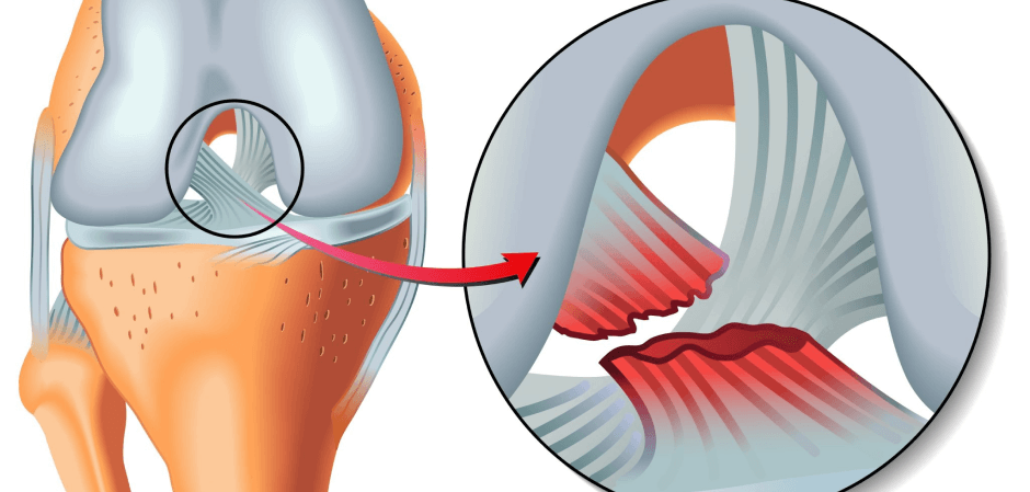 ACL Surgery: Is it really necessary? Blog