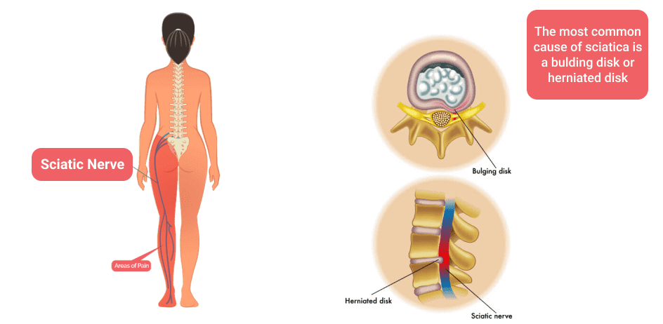 Don't Let Sciatic Nerve Pain Get in the Way of Your Life — ONC - Ocala Neurosurgical Center