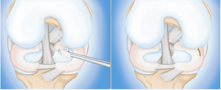 Diagnosis of a Meniscus Tear