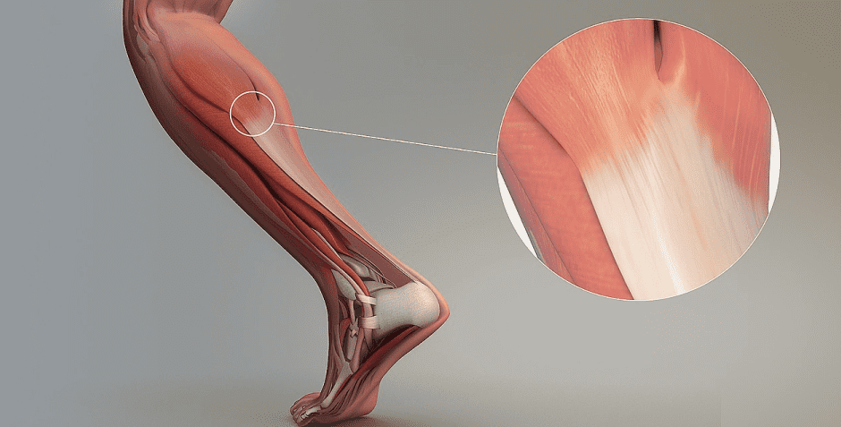 Treatment Options for Tendon Injuries and Tendinopathy Blog