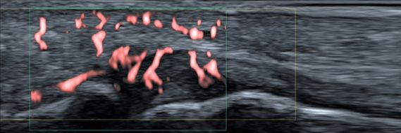 Superior Microvascular Imaging (SMI) Blog