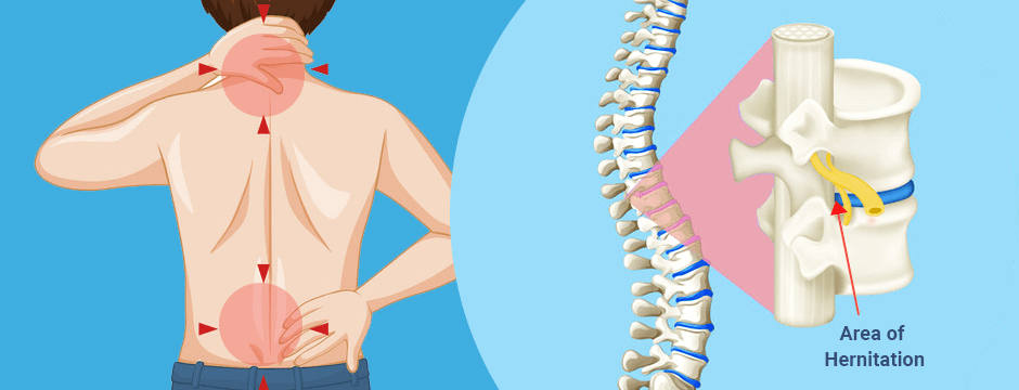 Indicators on I Have A Pinched Nerve In My Shoulder You Need To Know