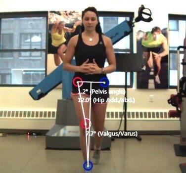 3D motion capture force plate Rehab clinic nyc